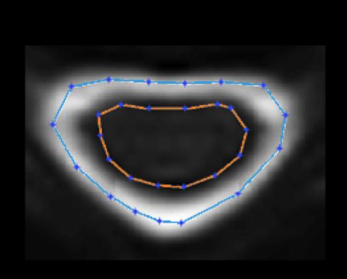 Figure2IRMb