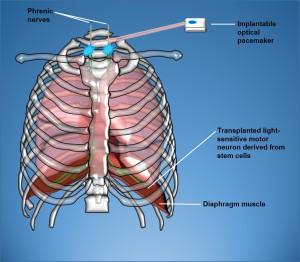 Greensmith  Schéma Diaphragm